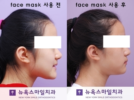 facemask-before-and-after