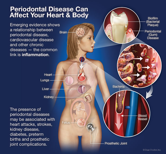 periodontal-disease-affects-heart-body,english spealking dentist in busan, busan braces,busan orthodontics treatment